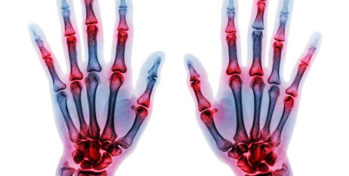 A Year in Review Rheumatology