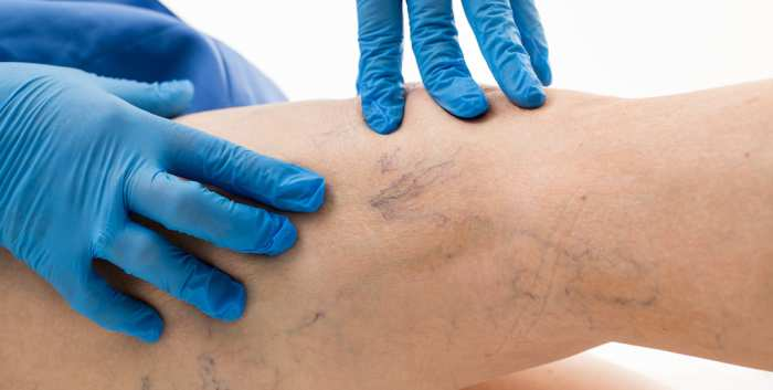 Foam Ablation of Varicose Veins Why When and How