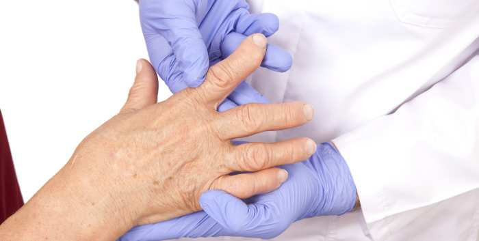 Monitoring Biologic Therapy in Rheumatoid Arthritis and Psoriatic Arthritis