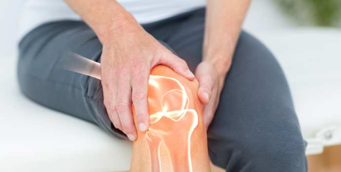 The New Science of Osteoarthritis What it Means in Managing Our Patients