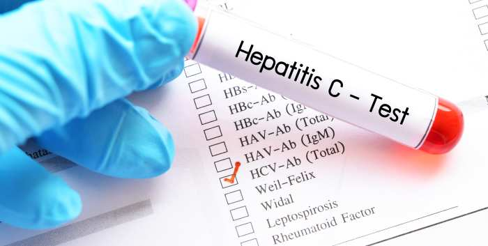 Viral Hepatitis What Are We Doing and What Should We Be Doing
