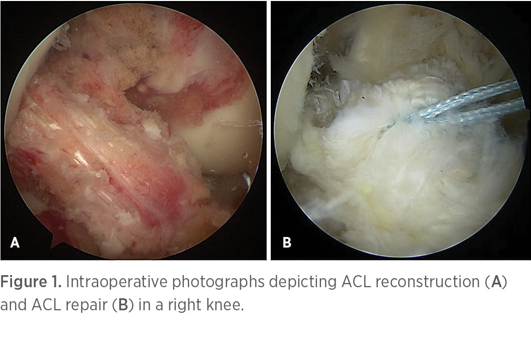 Intraoperative photographs depicting ACL reconstruction and ACL repair