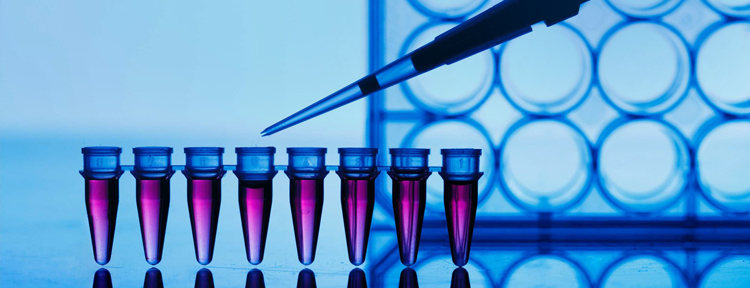 UPMC Physician Resources Urology Photo Blood in Test Tubes